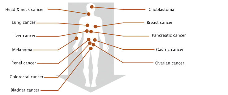 Not just for melanoma Immunotherapies work across a wide range of cancers, but only for a minority of patients