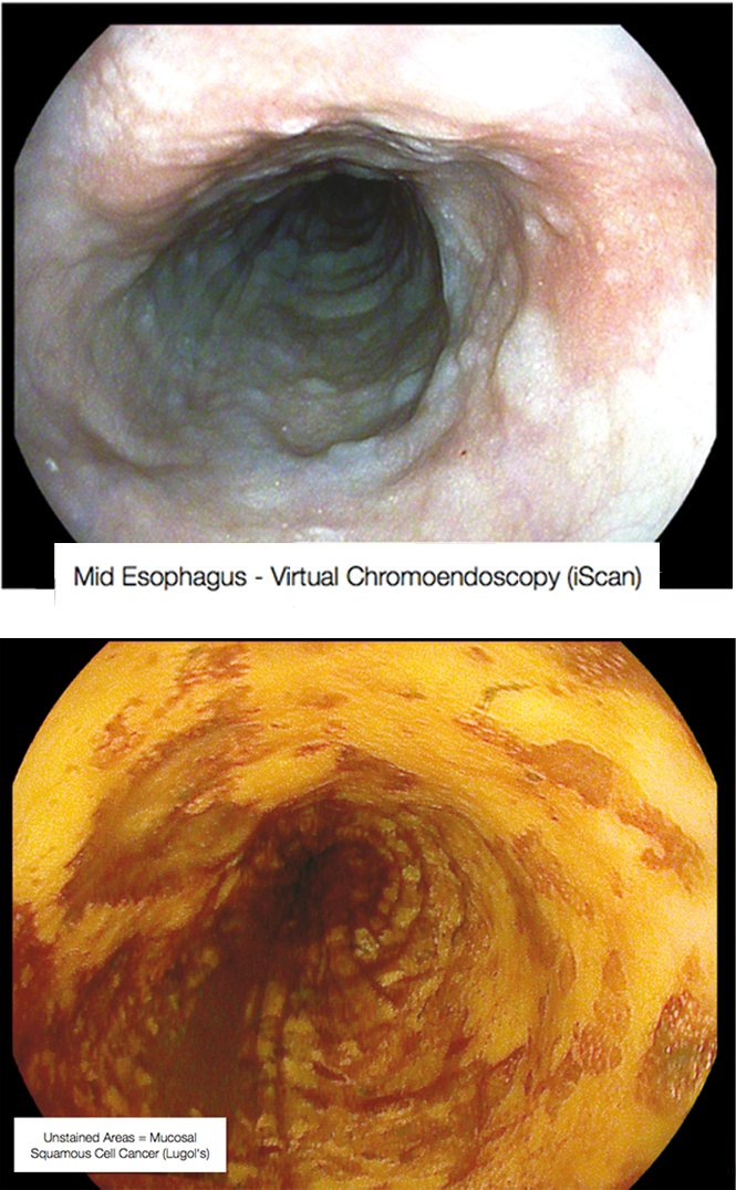 Enhancing images Mid-oesophagus scan using virtual chromoendoscopy (above) and Lugol's staining (below) in the same patient - Courtesy of Michael Häfner
