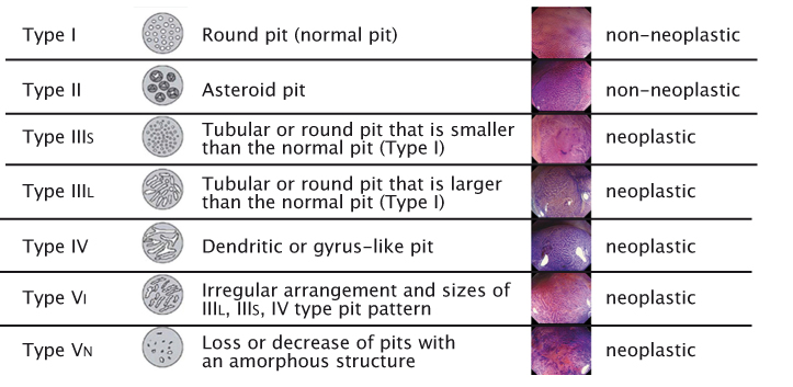 Kudo's Pit Pattern classification Source: S Kudo et al. (1996) Gastrointest Endosc 44:8–14 Reprinted with permission from Elsevier