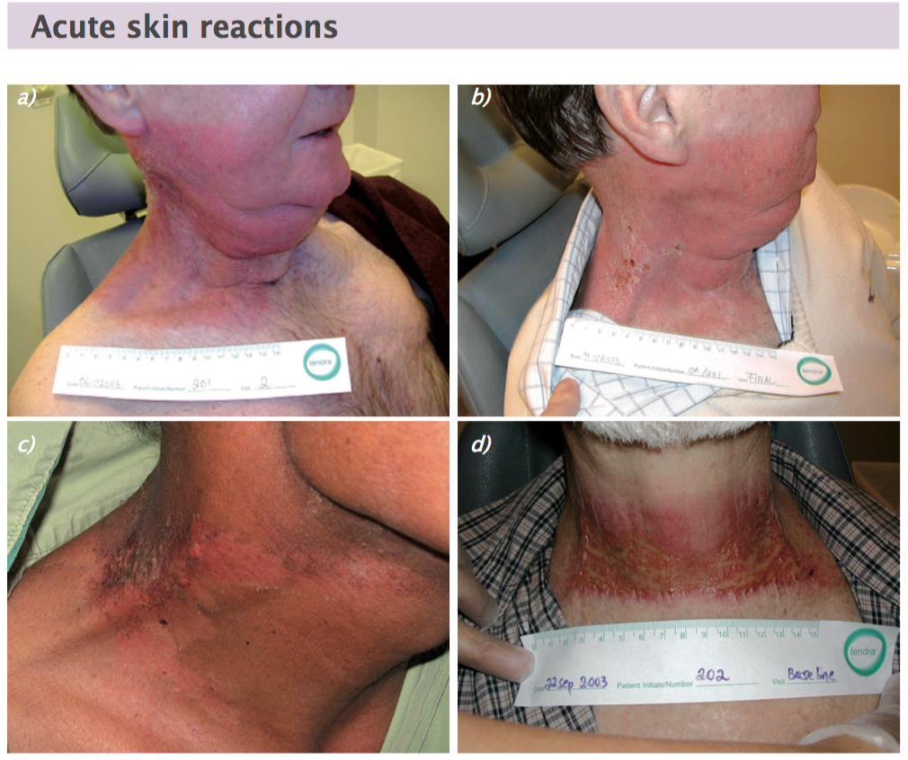 Acute radiation skin reactions start as erythema (a). If the reaction continues, dry desquamation occurs (b and c), which may be followed moist desquamation (d) Figures courtesy of Lena Sharp